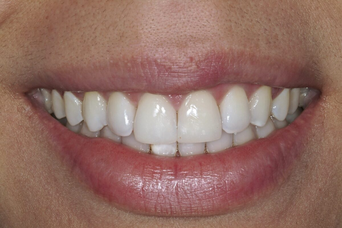 Porcelain Veneers Salem NH
