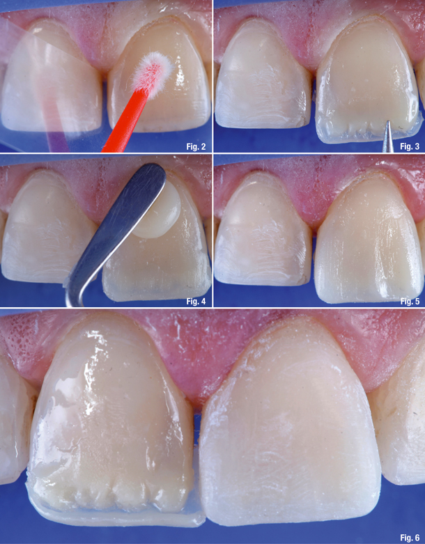 Artistic Direct Composite Veneers